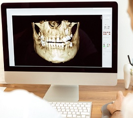 Dental patient having a dental implant consultation