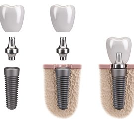 An implant, abutment, and dental crown