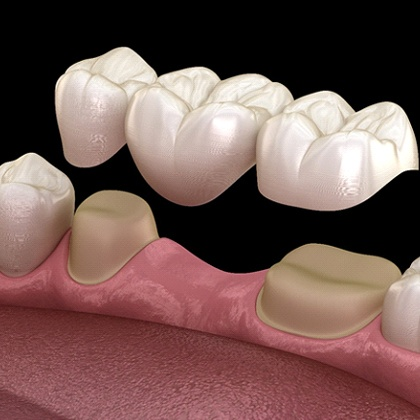 computer illustration of a dental bridge in Fargo being placed in a mouth