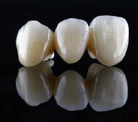 a porcelain dental bridge