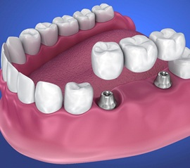 implant-retained bridge