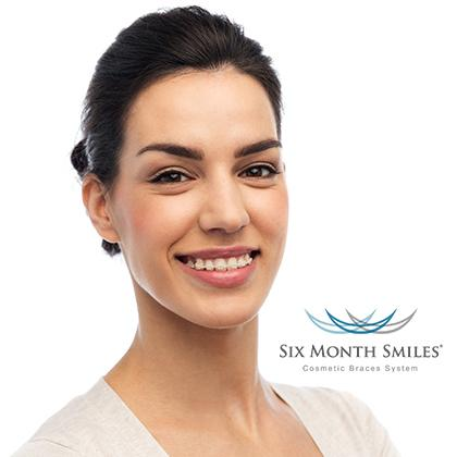 Woman with six month smiles braces