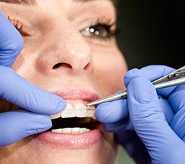 Closeup of dentist placing six month smiles braces