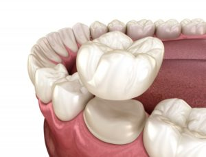 Illustration of same-day crown in Fargo being placed on tooth